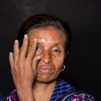 Scandalous Acid Victims , Bangladesh